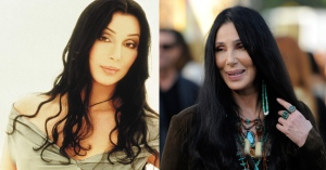 Cher - Before & After Plastic Surgery