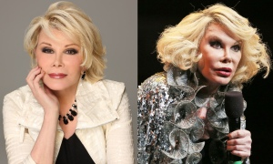 Joan - Before & After Plastic Surgery